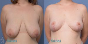 Breast Reduction - Case #1560
