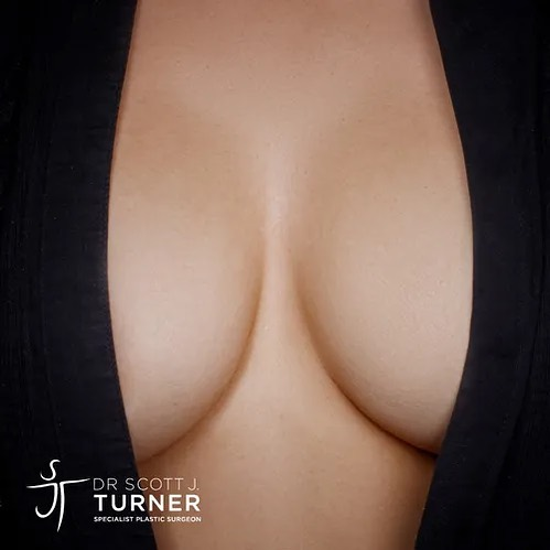 Benefits of Fat Transfer Vs Breast Implants Image Blog on Dr Scott Turner - Woman with Beautiful Body on Blue Two Piece