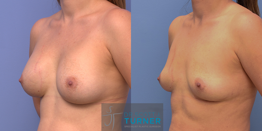 Breast Implant Removal and Total Capsulectomy