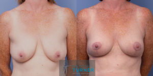 Breast Reduction - 2849